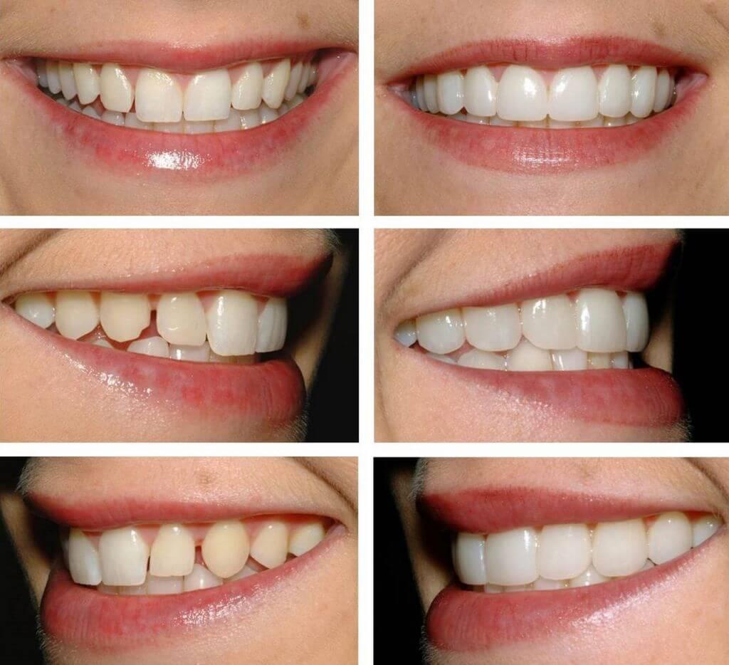 Виниры на зубы: что это, какие бывают, какова вилка цен на зубные керамические виниры, обзор материалов