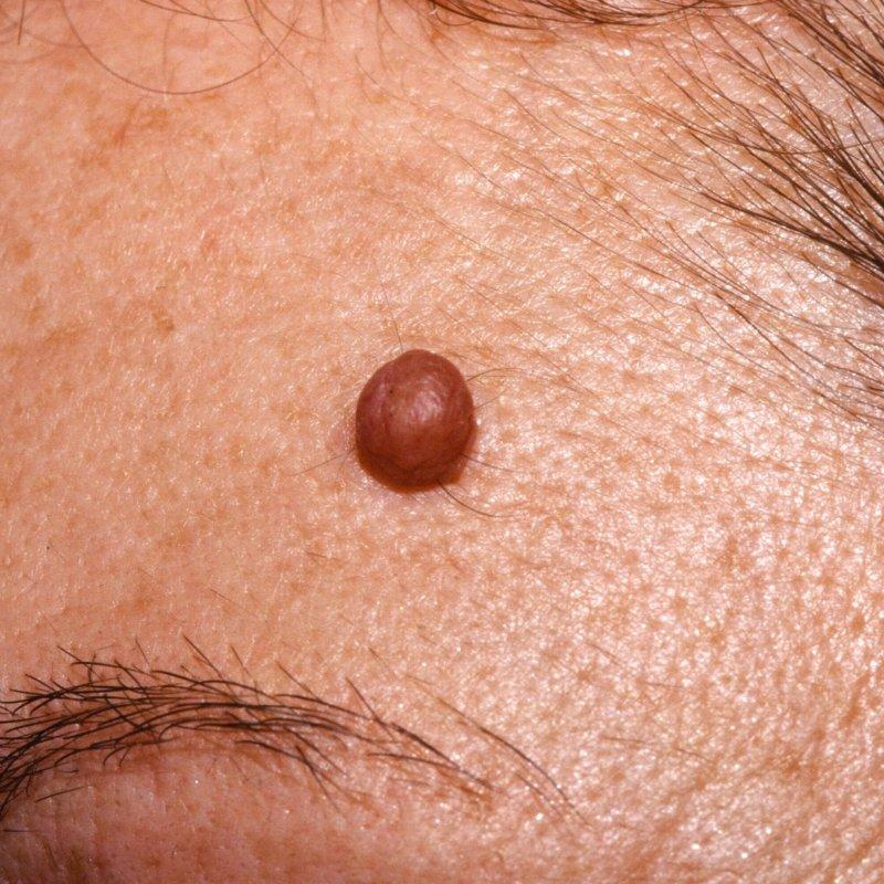 Основные виды невусов, их отличия друг от друга, принципы диагностики невусов и профилактики меланомы