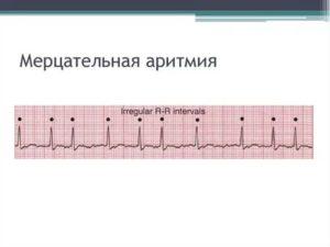 Лечение мерцательной аритмии сердца: причины и симптомы, как проводится кардиоверсия, абляция сердца, хирургическая операция и рецепты народной медицины