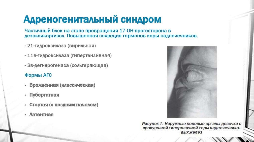 Олигоменорея: причины, симптомы, диагностика и лечение