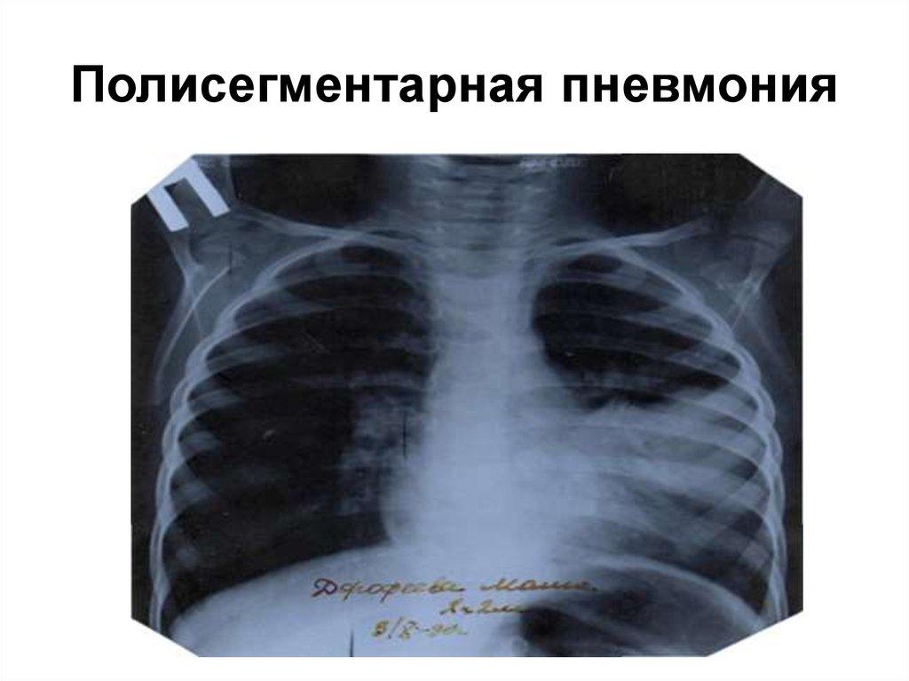 Полисегментарная пневмония у взрослых: причины,симптомы и лечение воспаления