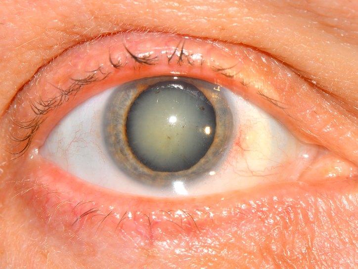 Чем грозит человеку ядерная катаракта?