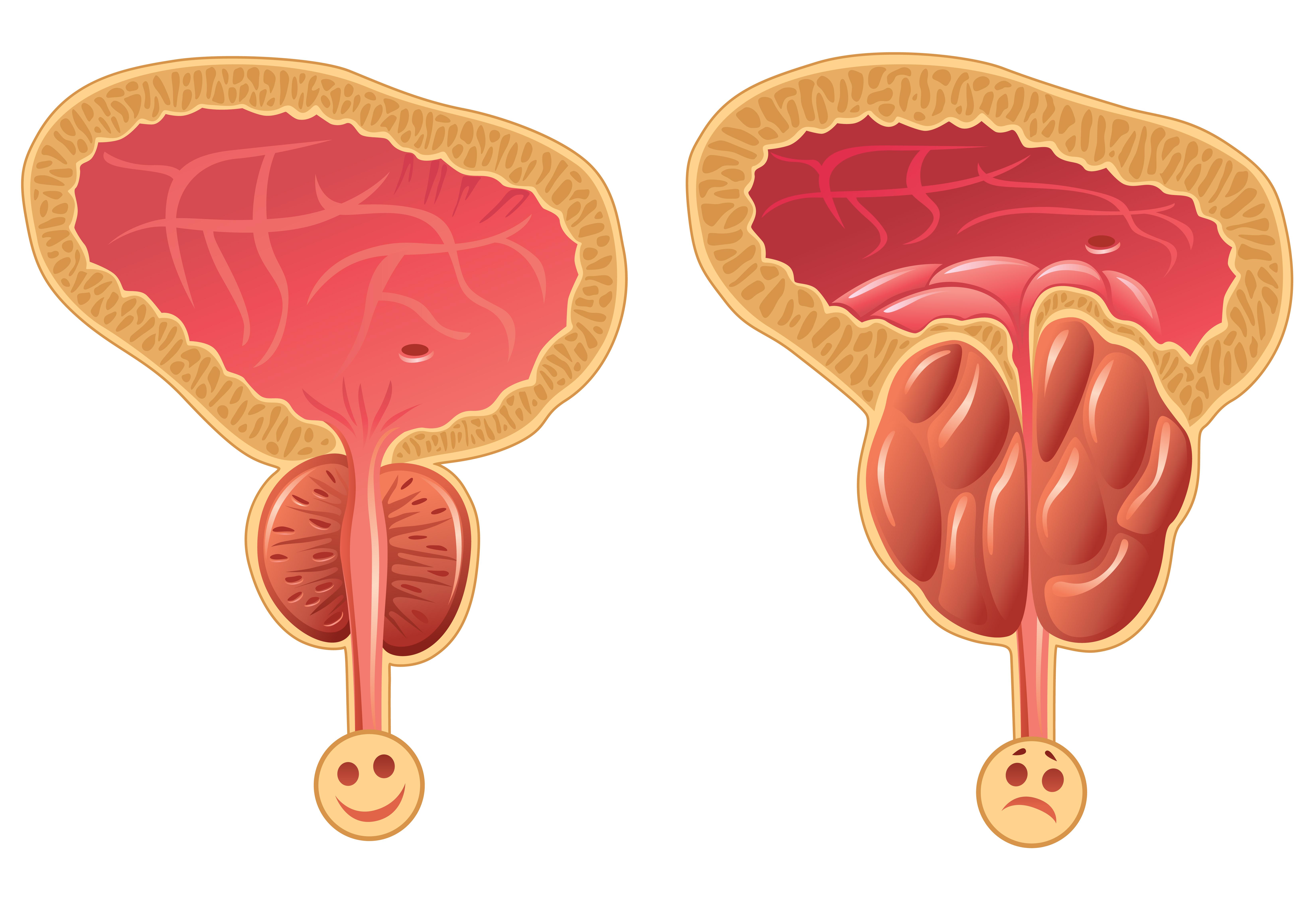 Симптомы аденомы простаты у мужчин и лечение