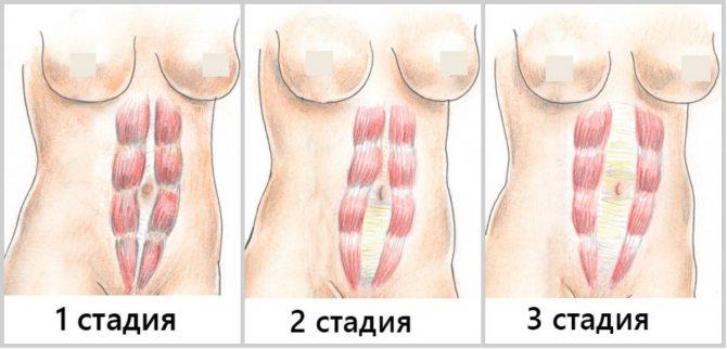 Диастаз прямых мышц живота: диагностика, симптомы, лечение - пластика и салонные процедуры по уходу