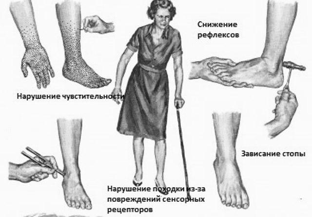 Что такое диабетическая полинейропатия и ее лечение