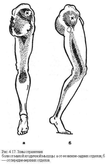 Остеохондроз позвоночника мышечно тонический синдром что это такое