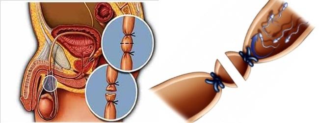 Вазэктомия как метод котрацепции: подготовка к операции, жизнь после