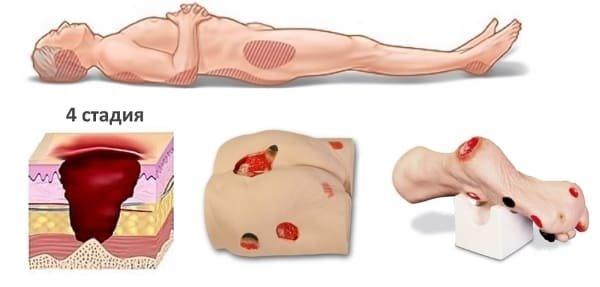 Пролежни - лечение, стадии, обработка и профилактика пролежней