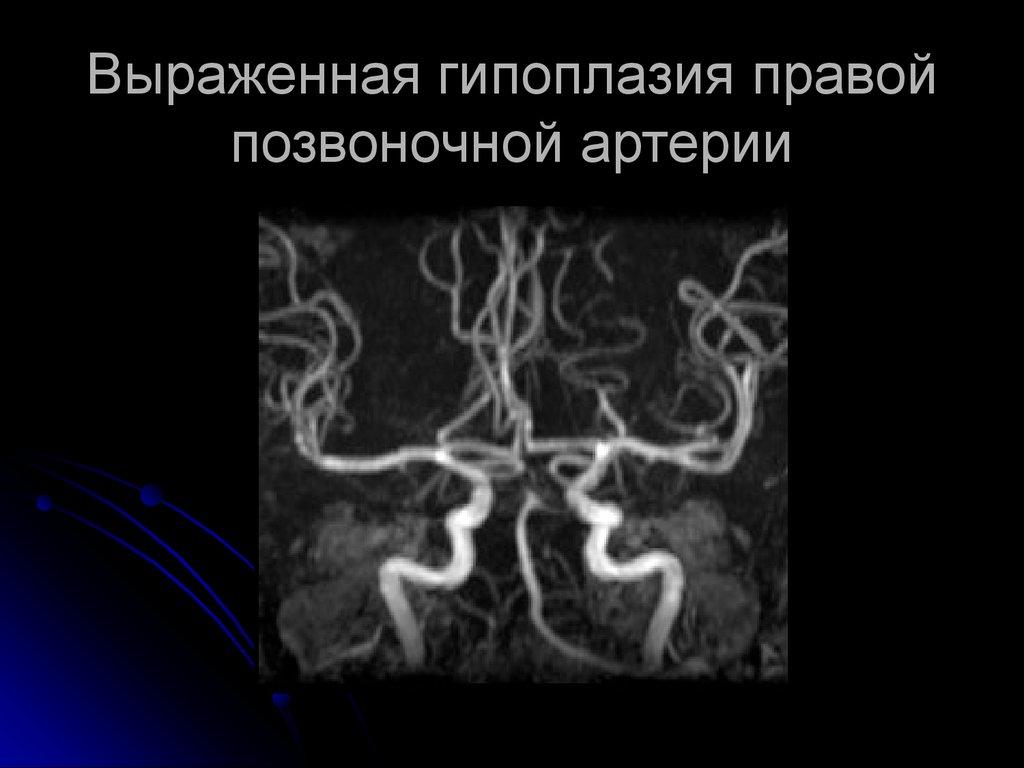 Гипоплазия правой позвоночной артерии: симптомы и лечение
