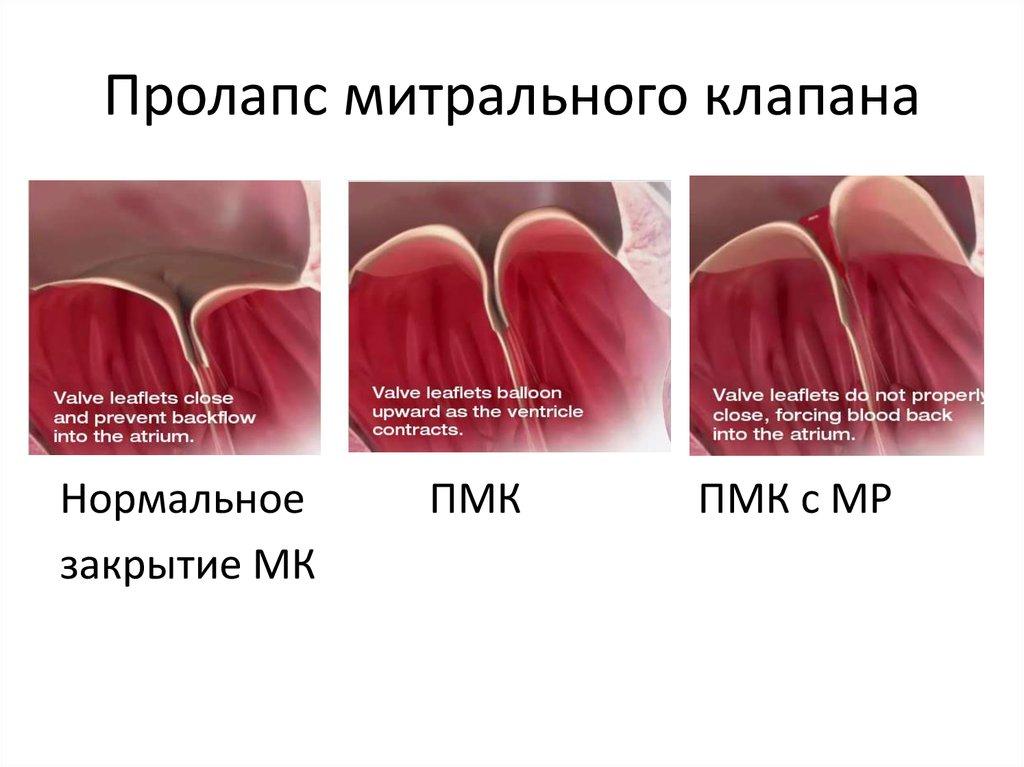 Что такое пролапс митрального клапана 1 степени: причины и методы лечения