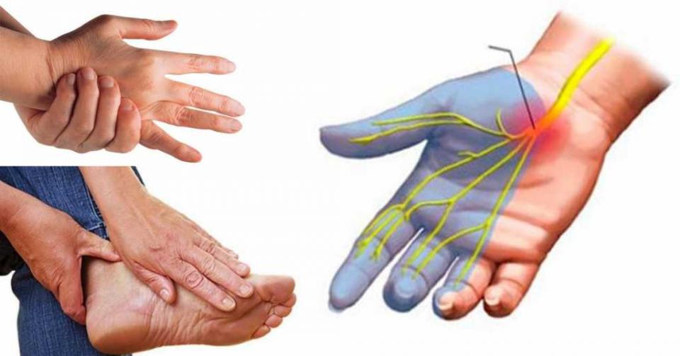 Парестезия конечностей: что это такое, лечение