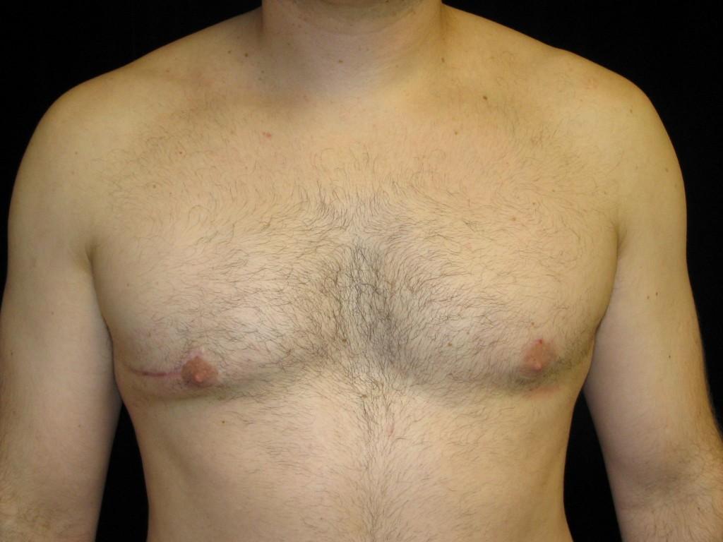 Гинекомастия у мужчин (мкб-10 n62) - лечение, операция удаления, цена, фото