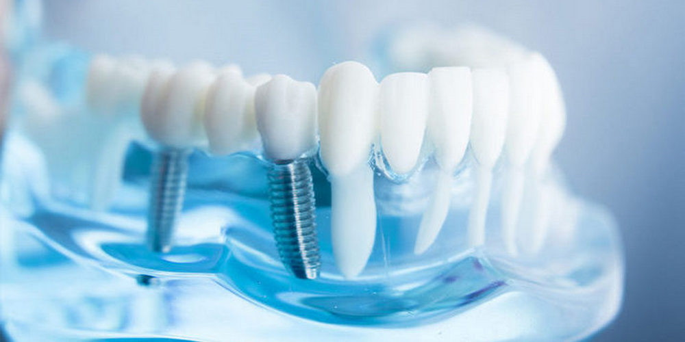 Что такое дентальная имплантация и можно ли восстановить зубы за 1 день