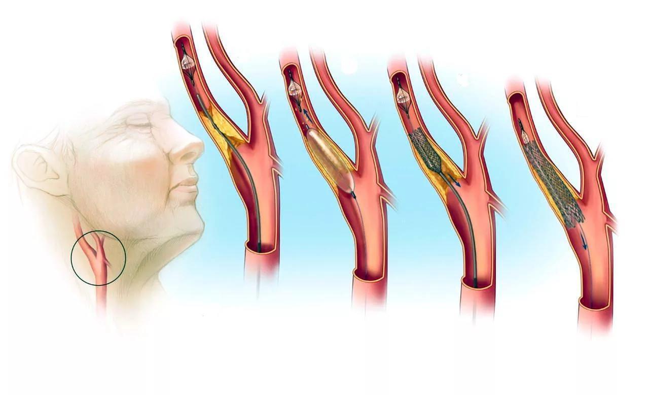 Дуплексное сканирование брахиоцефальных артерий (уздс бца): что это такое, как проводится ультразвуковое транскраниальное исследование сосудов головы и шеи?