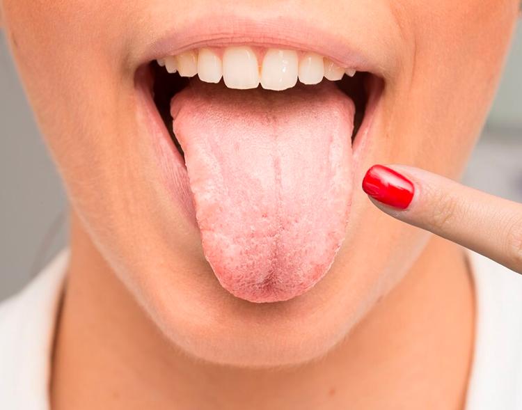 Как победить типун на языке: эффективные способы лечения