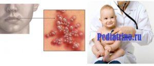Герпес 6 типа у детей: что это такое, симптомы и лечение вируса, как лечить в горле, последствия