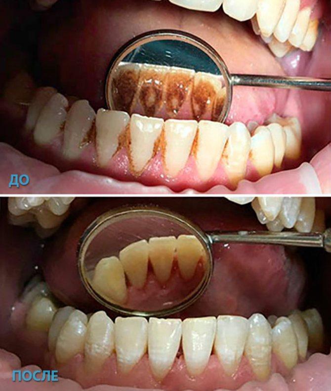 Как выглядит зубной камень? причины появления зубного камня и его связь с потерей зубов, фото