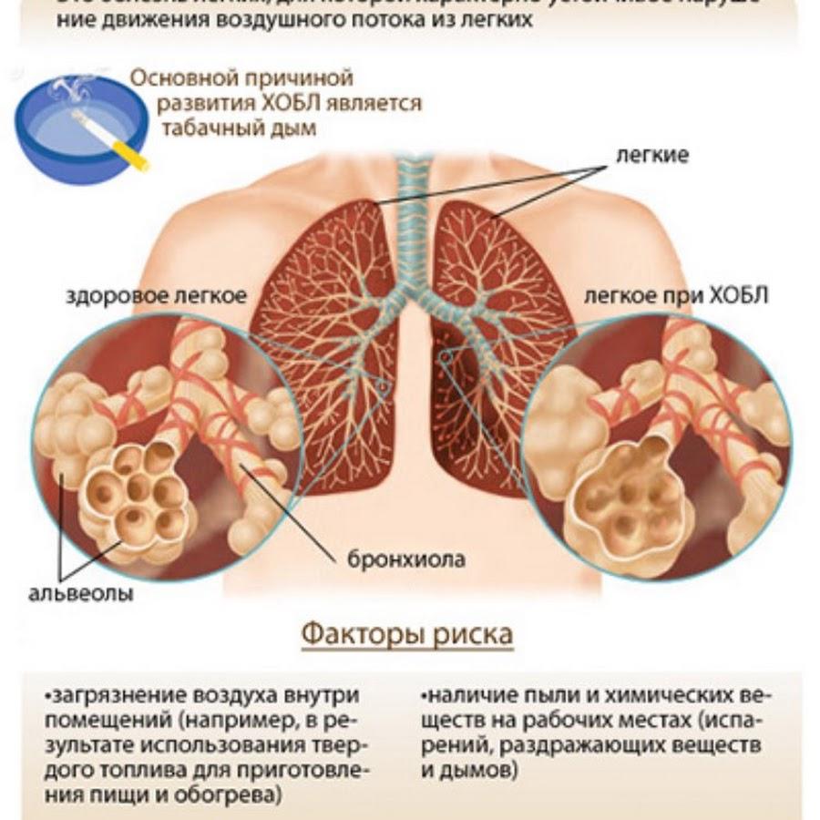 Хобл: причины, симптомы, лечение хронического обструктивного бронхита – напоправку