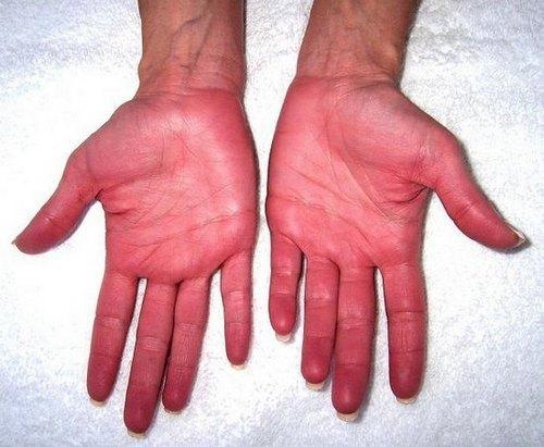 Синдром марфана — википедия. что такое синдром марфана