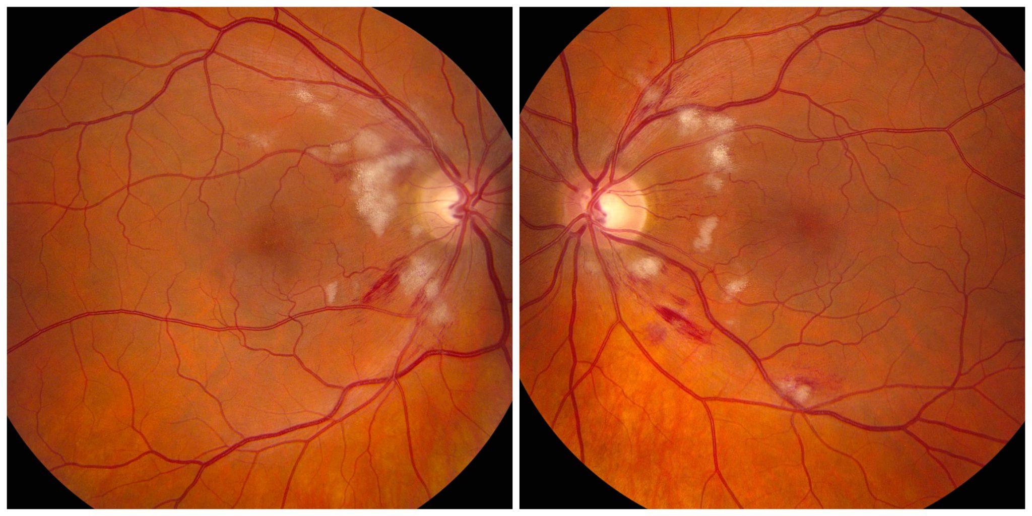 Ангиопатия сетчатки – как сохранить зрение?