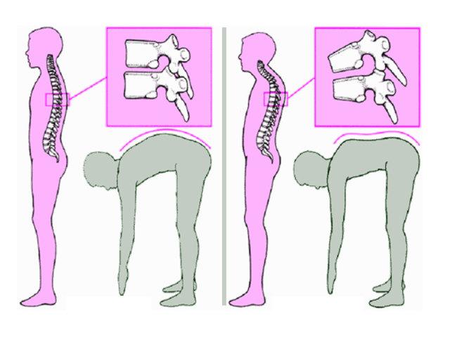 Дорсопатия поясничного отдела позвоночника: что это такое, лечение, лечебная физкультура