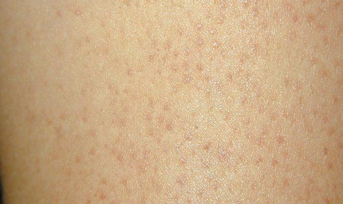 Гиперкератоз шейки матки: виды, стадии, диагностика и лечение