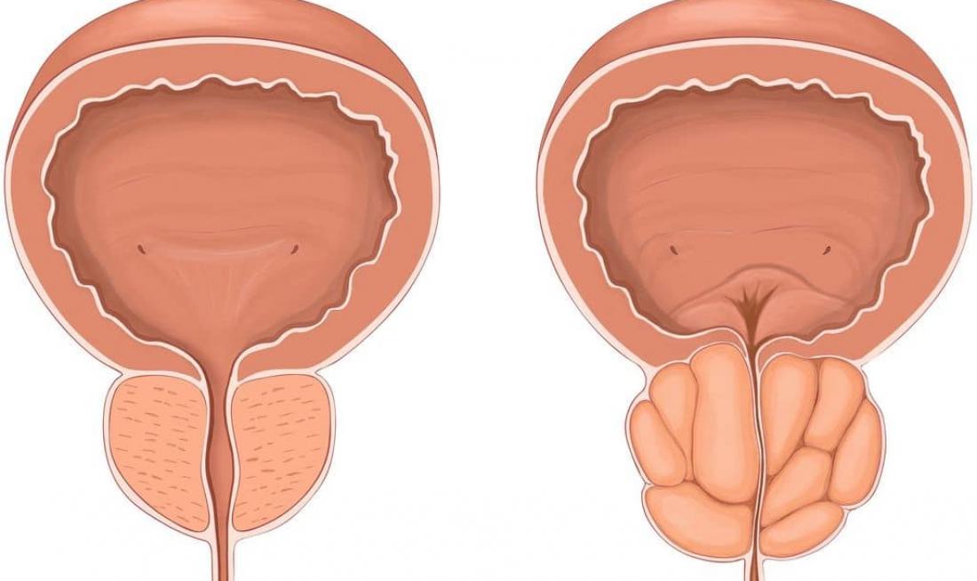 Основные симптомы простатита и аденомы простаты у мужчин | все о простатите и аденоме