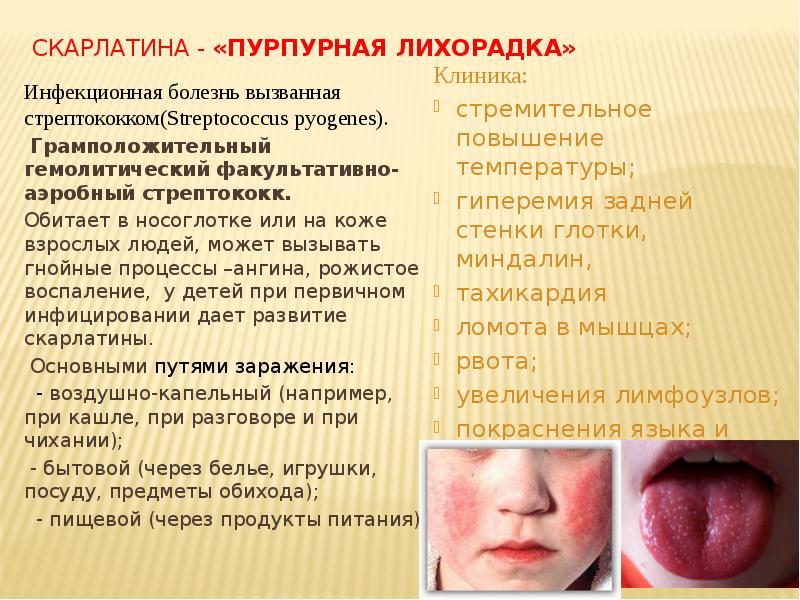 Что это такое streptococcus pyogenes: причины, лечение митис, оралис и пиогенес стрептококков