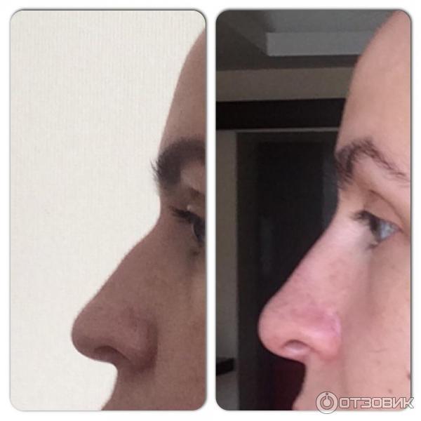 Ринопластика курносого носа