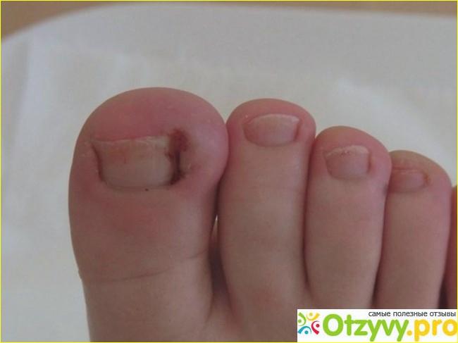 Врастает ноготь что делать — причины, эффективные методы лечения и профилактика повторного врастания ногтя (110 фото)