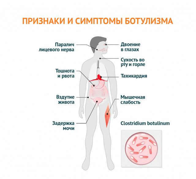 Симптомы переутомления у взрослых лечение