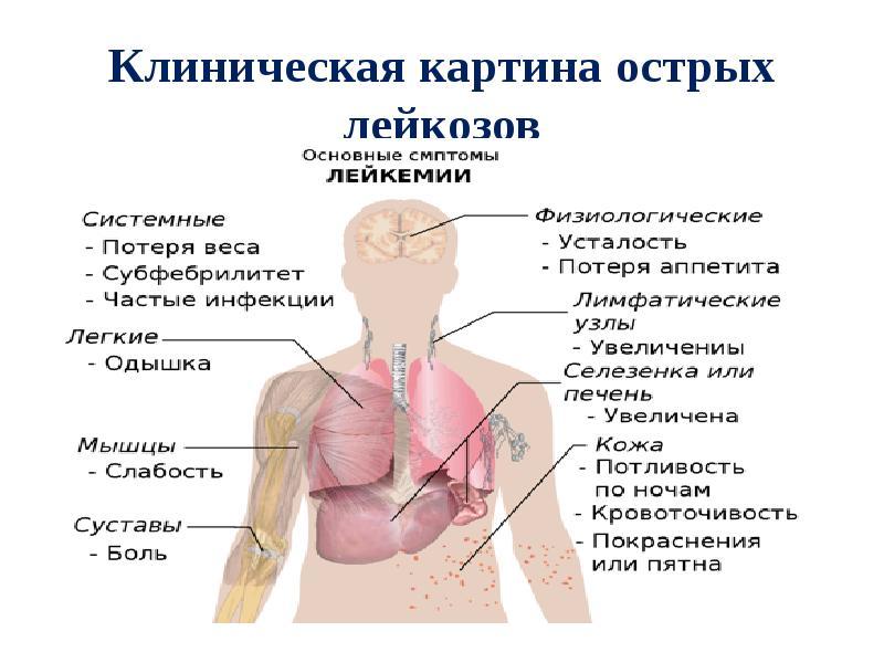 Лейкоз — википедия. что такое лейкоз