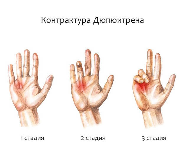 Что такое капсулярная контрактура - симптомы, причины, лечение