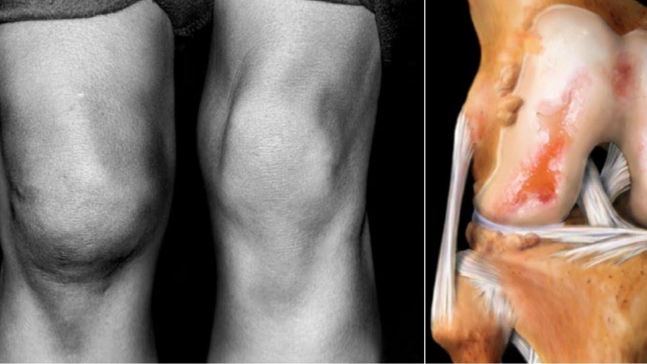 Гонартроз 3 степени коленного сустава: что это такое, симптомы и лечение