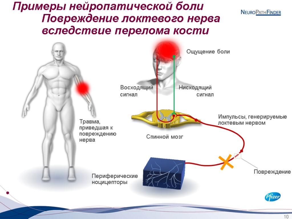 Боль, болевой синдром: причины, виды, диагностика, лечение, нейропатическая боль | mosmedic.com