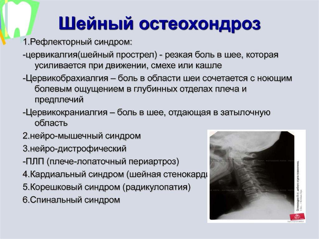 Что такое вертеброгенная цервикалгия: причины патологии и обследование