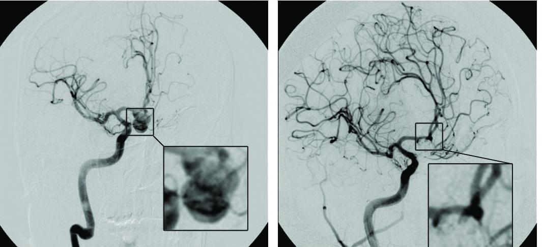 Аневризма сосудов головного мозга: симптомы, лечение, прогноз на выздоровление