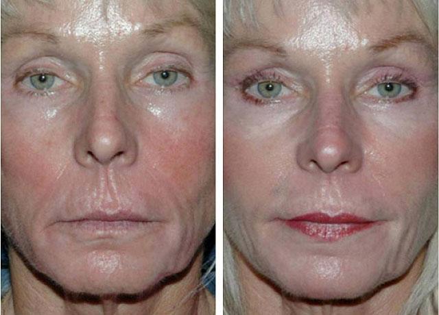 Что такое филлеры в косметологии: контурная пластика лица, отзывы