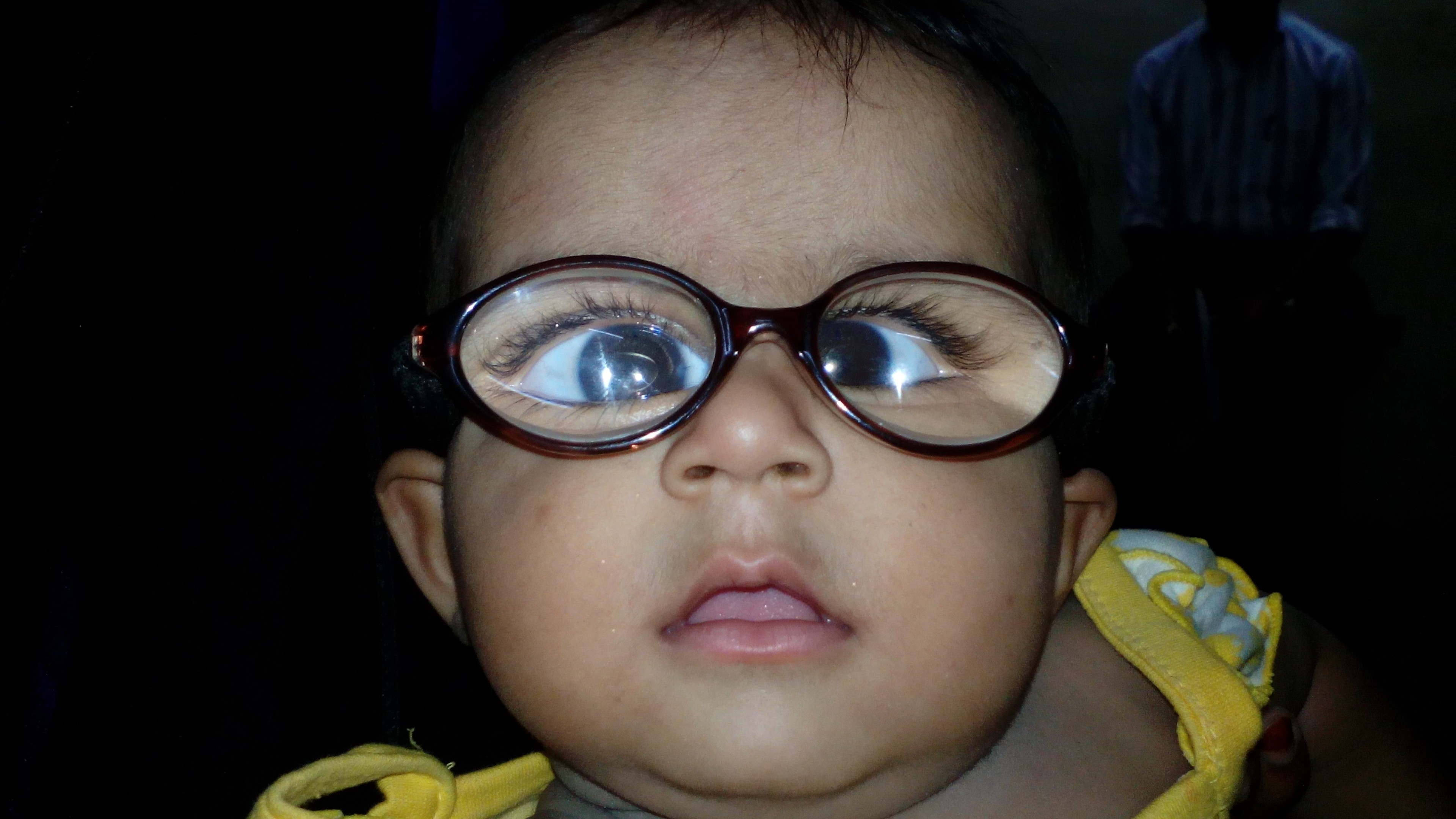 """Амблиопия или ленивый глаз: симптомы, лечение - """"здоровое око"""""""
