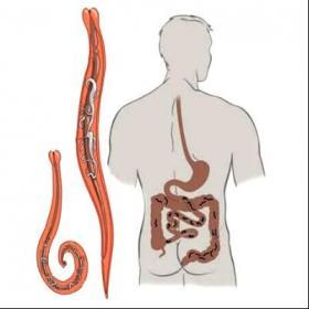 Глава 1 что такое паразит?. очищение от паразитов и глистов