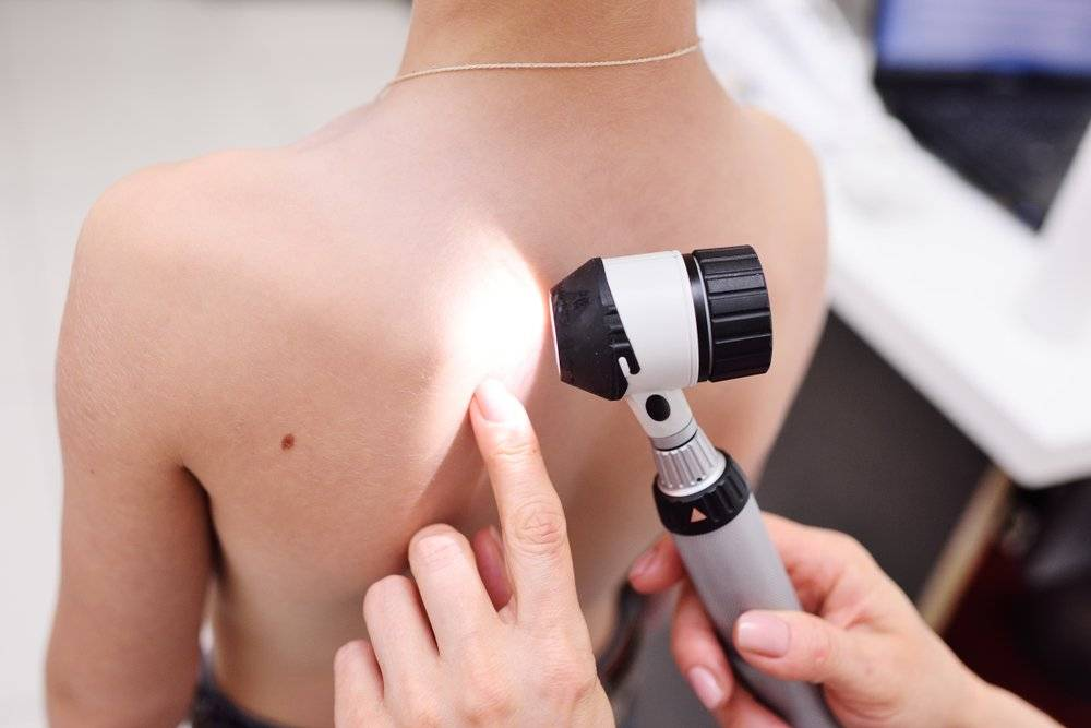 Что такое дерматоскопия? какие заболевания диагностирует?