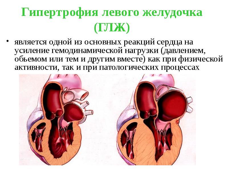 Кардиомегалия: что это, причины, диагностика, лечение