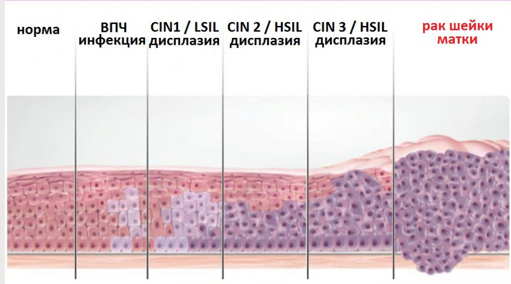 Дисплазия шейки матки первой степени – причины и лечение радиоволнами
