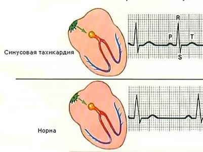Синусовая аритмия сердца: что это такое, симптомы, экг, причины, лечение