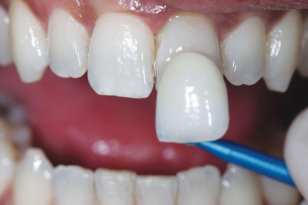 Виниры - что это и как их ставят на зубы. есть ли альтернатива винированию