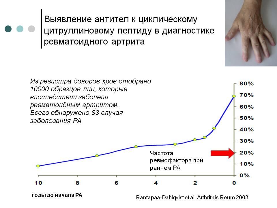 Для чего сдавать анализ аццп при ревматоидном артрите