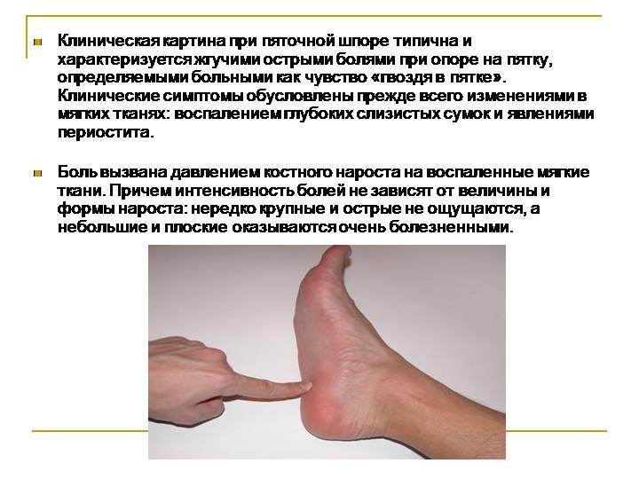 Пяточная шпора. причины, симптомы, диагностика и эффективное лечение пяточной шпоры. :: polismed.com