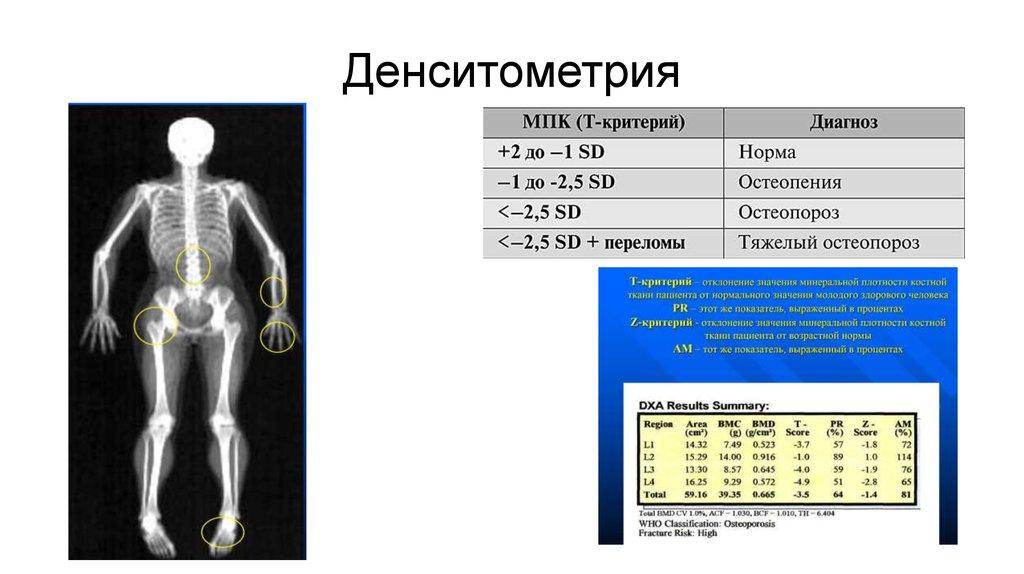 Остеоденситометрия: что это такое, как ее проводят, цены на процедуру