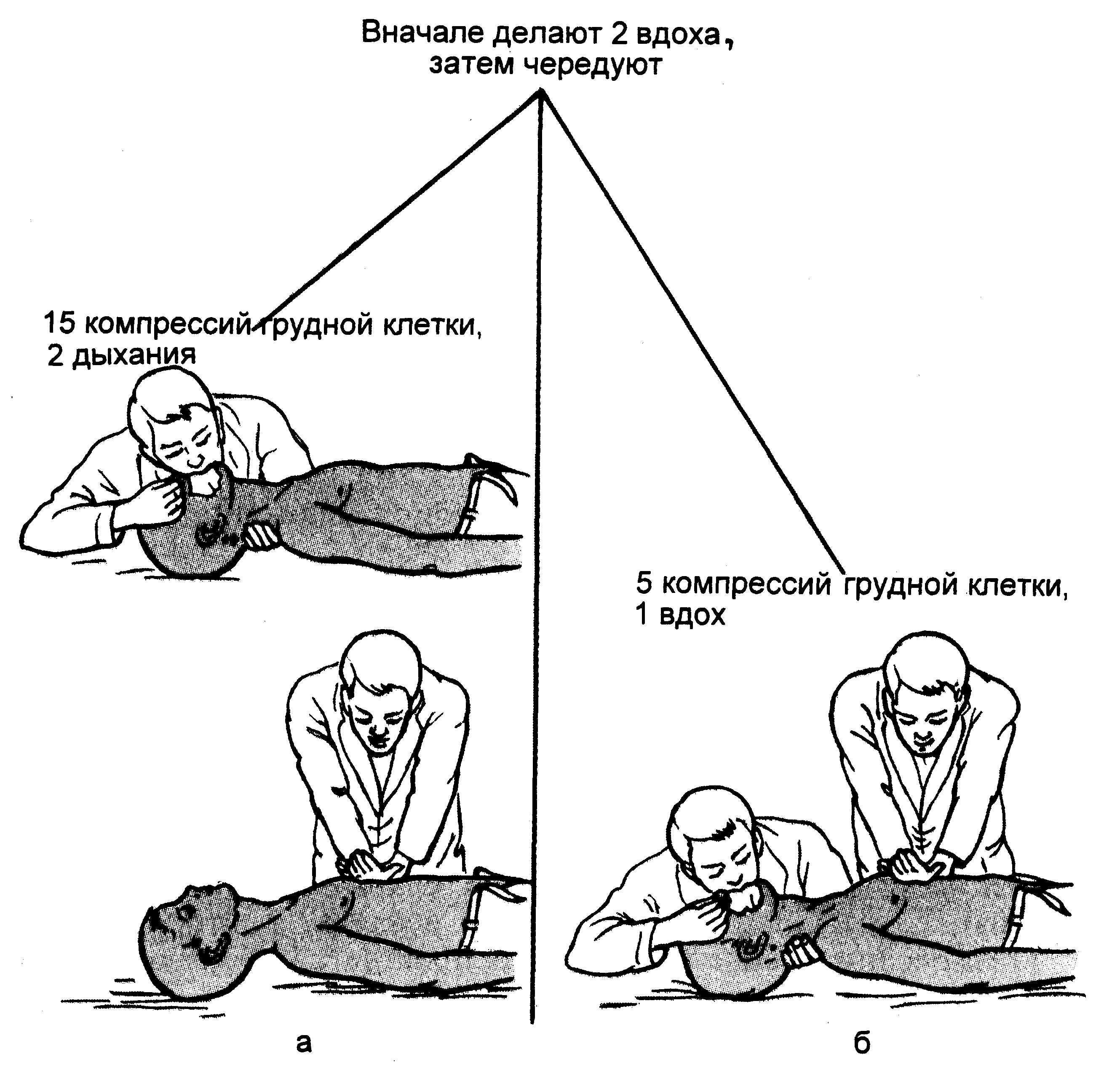 Сердечно-лёгочная реанимация — википедия. что такое сердечно-лёгочная реанимация