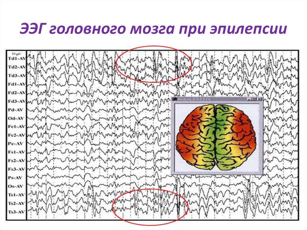 Электроэнцефалография (ээг): как проводится, показания, подготовка | food and health